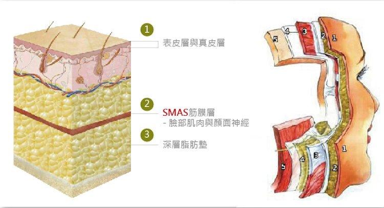 立新美學,三層次,拉皮,表皮層與真皮層,smas筋膜層-臉部肌肉與顏面神經,深層脂肪墊