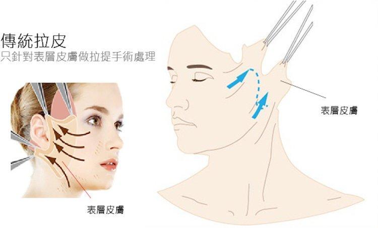 立新美學,三層次,拉皮,傳統拉皮只針對表層皮膚做拉提手術處理,表層皮膚