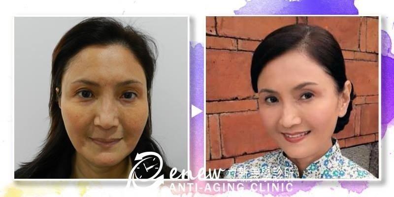 【自體脂肪移植補臉】智能型-自體脂肪全臉雕塑