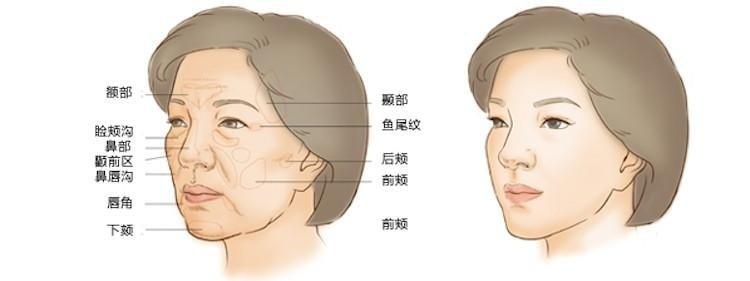 【自體脂肪移植補臉】智能型-自體脂肪全臉雕塑,額部,臉頰溝,鼻部,顴前區,鼻唇溝,唇角,下顎,魚尾紋,後頰,前頰