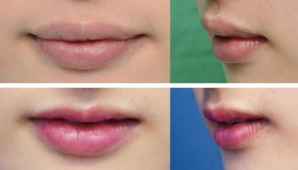 【謝氏縮唇/3D俏唇珠】醜唇形怎麼辦? 謝氏縮唇終結它!,立新美學診所