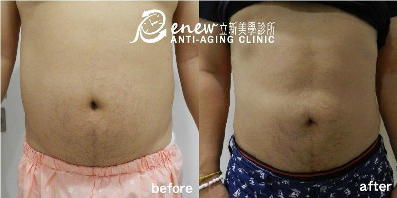 複合式抽脂精雕術,立新美學診所,抽脂對比圖,抽脂,大腿抽脂,瘦大腿,小腿抽脂,手臂抽脂,瘦手臂,腹部抽脂,大腿環抽