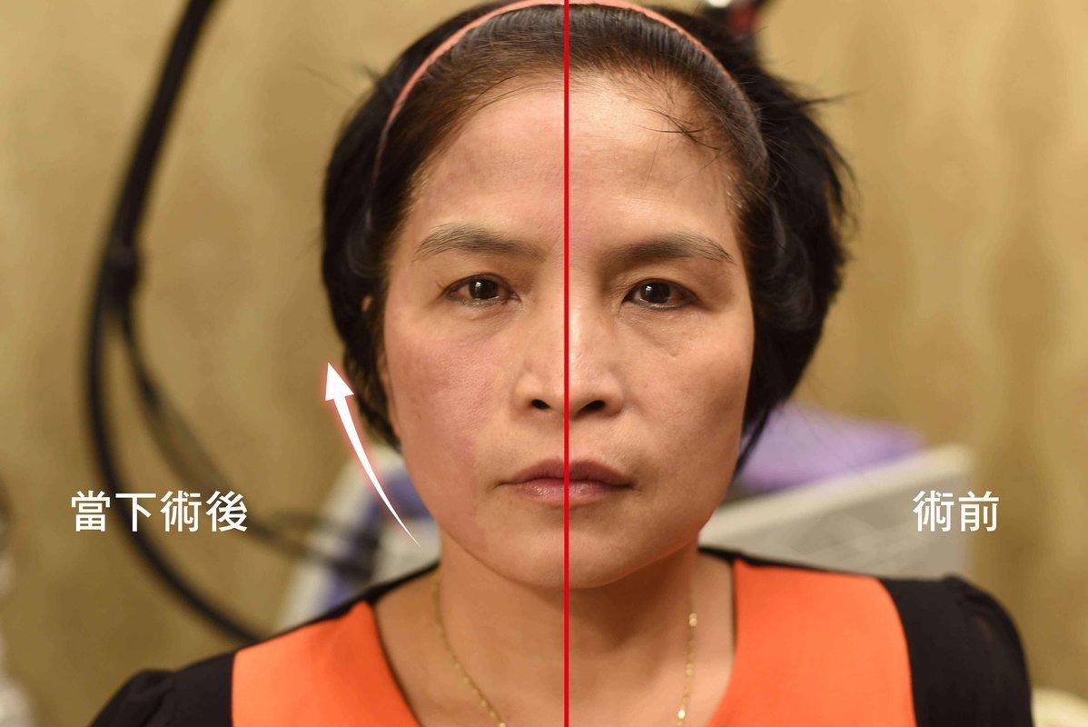 【美魔黃金電波】一機搞定!皺紋、凹洞疤瑕疵膚質、鬆垂肌 通通OUT!